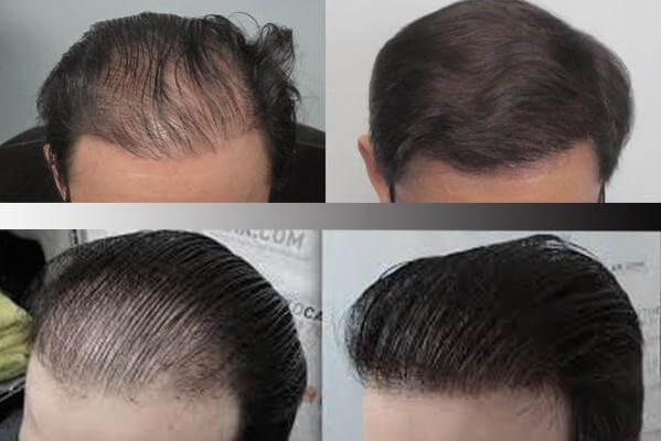 کاشت مو در شیراز و انواع روش های کاشت موی سر